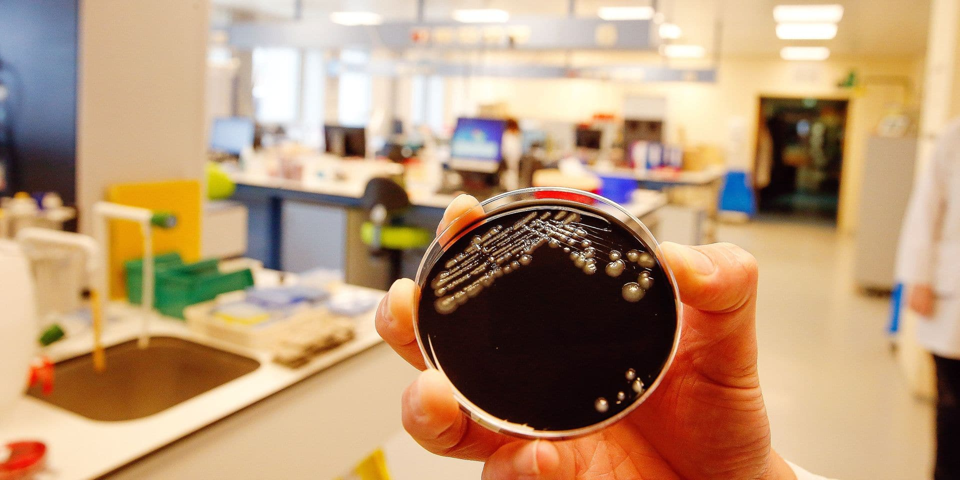 Illustration picture shows a culture of the Legionella pneumophila bacteria at the UZ Gent hospital, Friday 17 May 2019. Since May 3rd at least 18 people were admitted to the hospital with the legionella bacteria, two persons died. The exact source is still to be determined, but thought to be found in the Evergem canal zone. BELGA PHOTO NICOLAS MAETERLINCK