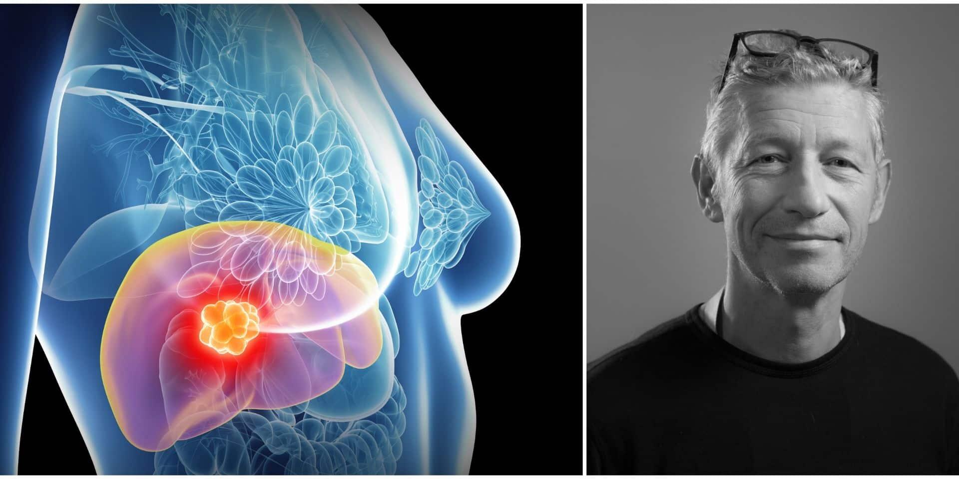 De nouvelles perspectives pour les patientes souffrant de cancer du sein avec métastases hépatiques