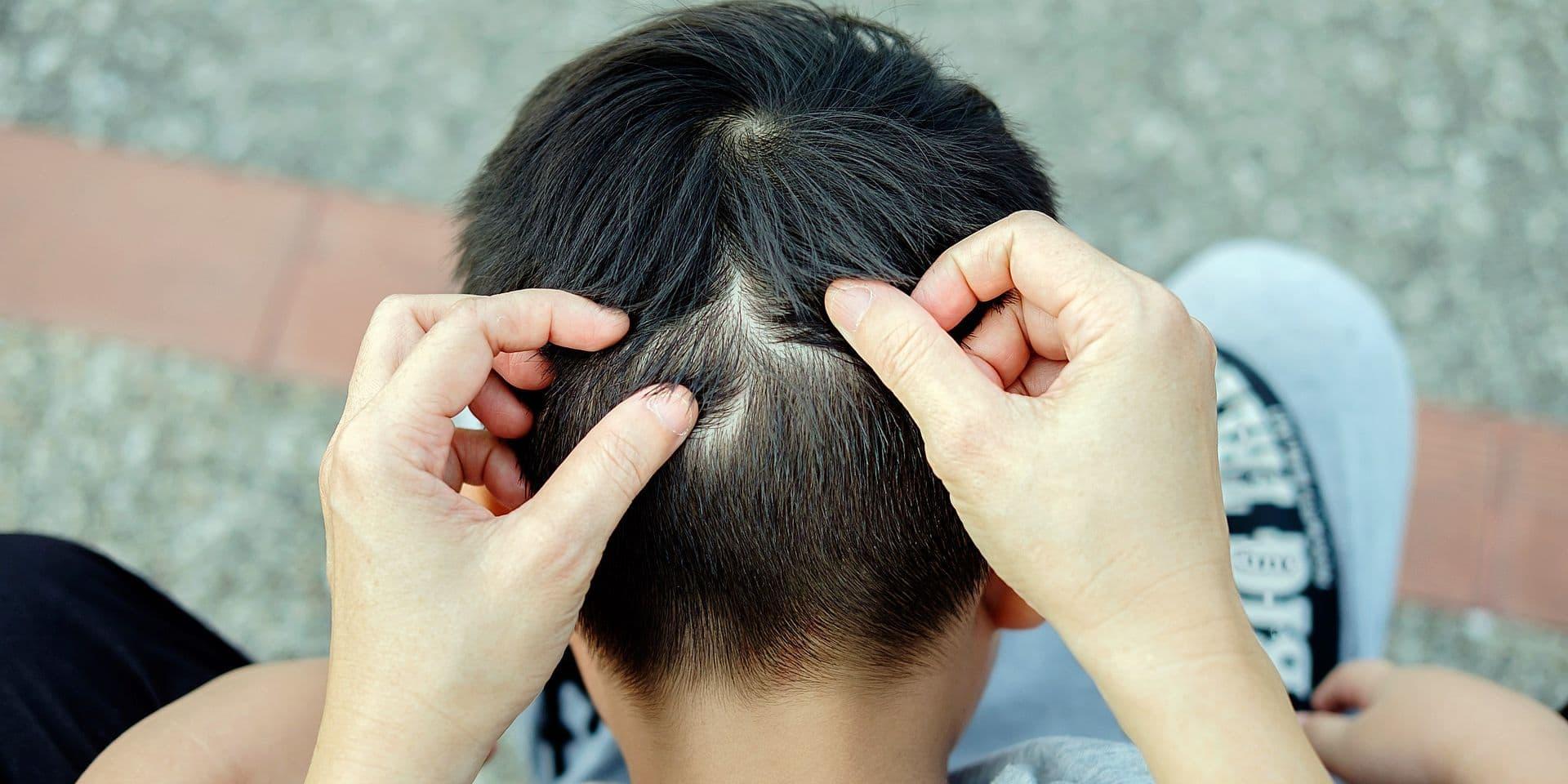 """Dans la guerre aux poux, on n'a pas avancé d'un cheveu en dix ans: """"Les parents fâchés s'en prennent les uns aux autres"""""""